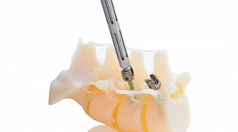 Rivoluzionario impatto della nuova tecnologia 3d sulla chirurgia ortopedica