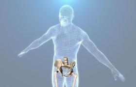 Intervento di protesi d'anca oggi
