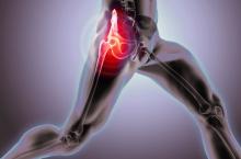 Pillole di Ortopedia - Artrosi dell'anca