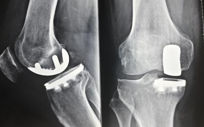 """""""What's new"""" sull'intervento di protesi al ginocchio"""